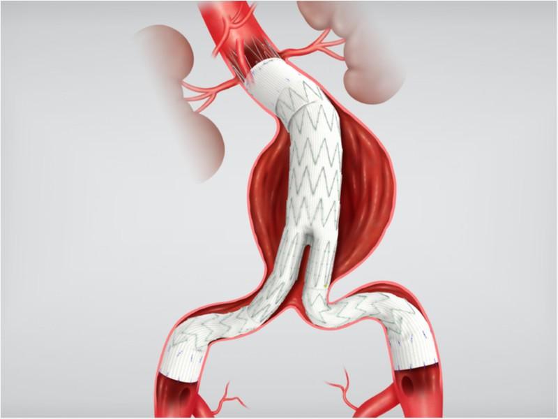 Enxerto Endovascular Abdominal Zenith® Flex®