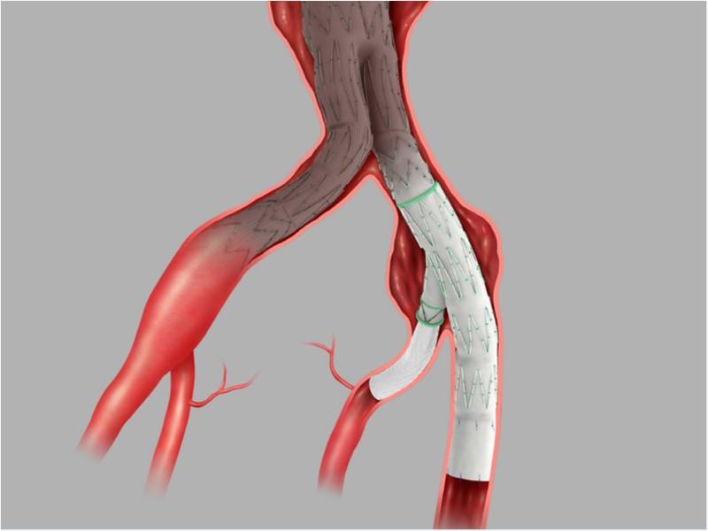Endoprótese Endovascular Ramificada de Ilíaca Zenith® Branch