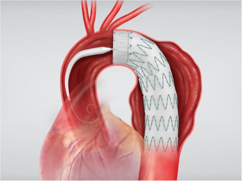 Enxerto Endovascular Torácico Zenith